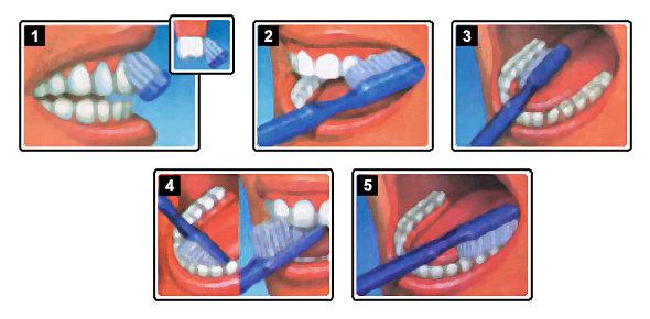 como cepillarse los dientes correctamente