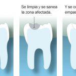 ¿Qué es un empaste dental?